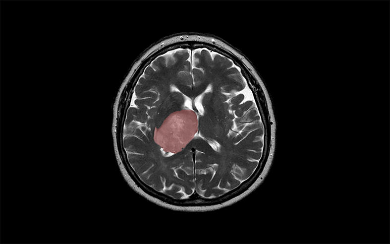 scan of a brain tumour