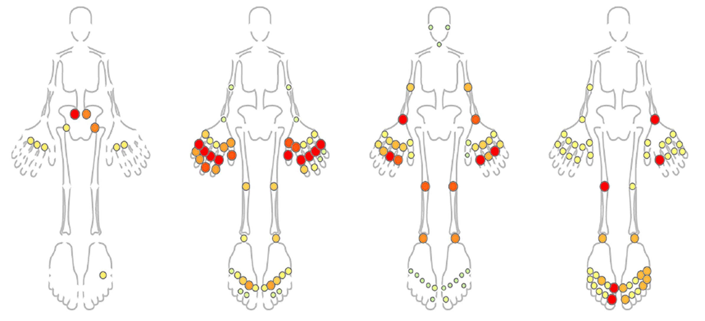 juvenile arthritis patters